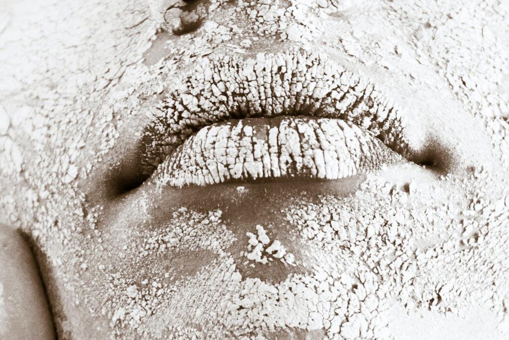 Làm thế nào để đối phó với da khô, nứt nẻ