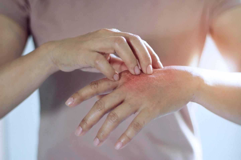 Nhận biết sự khác biệt giữa vẩy nến, ửng đỏ, viêm da & chàm
